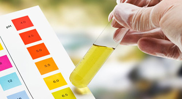 Urine Function Test